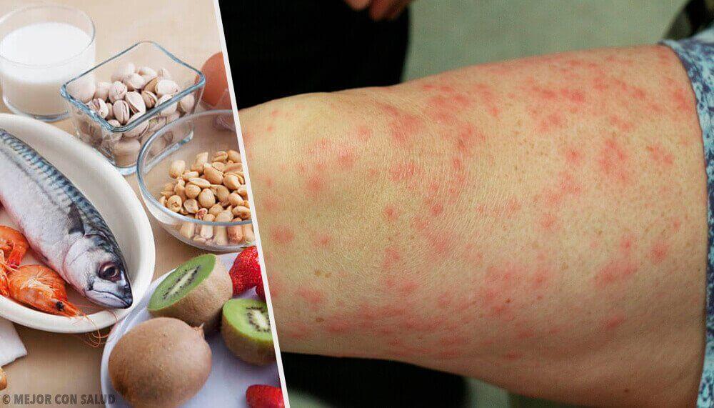 Yleisimmät ruoka-aineallergiat ja hyviä korvikkeita allergisoiville ruuille