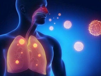 hengitystietulehdukset