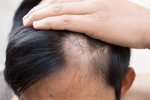 hoidot miehen kaljuuntumiseen