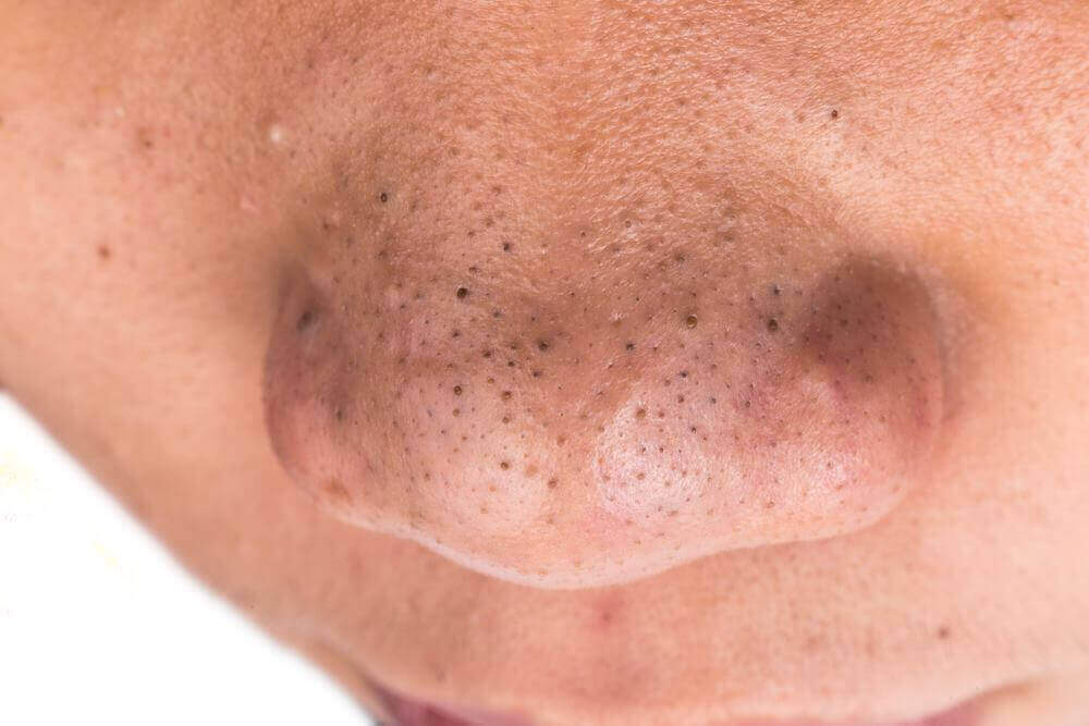 luonnollinen kaurasaippua auttaa epäpuhtaan ihon parantamisessa