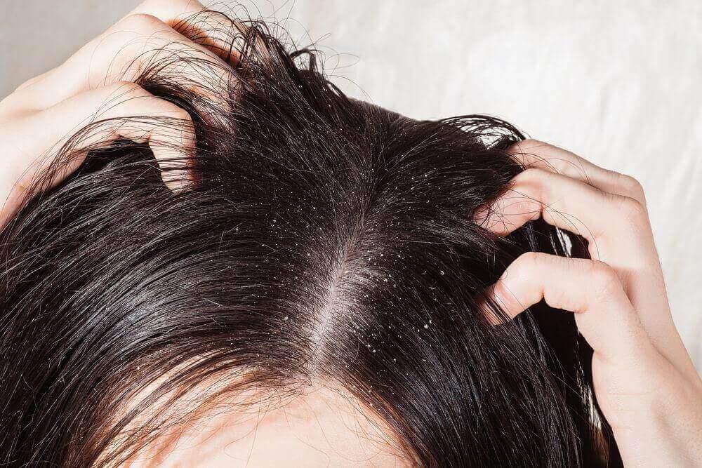 6 parasta luontaishoitoa päänahan sieni-infektioon