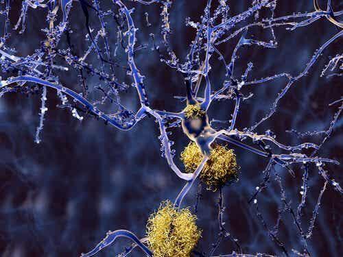 Mitä on dementia, joka ei ole Alzheimerin tautia?