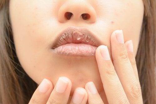 kuivat huulet