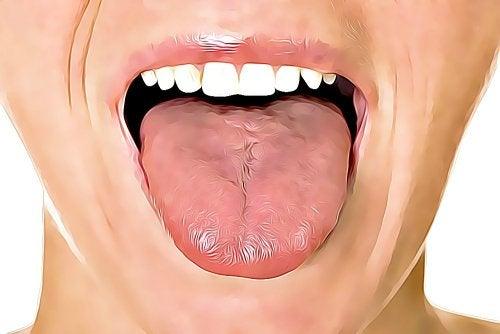 6 kotihoitokeinoa suun haavaumiin