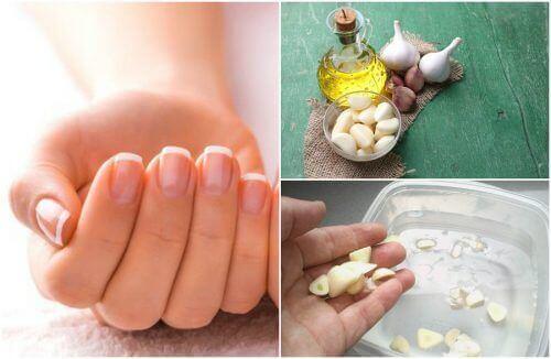 5 kotihoitoa kynsien kasvun vauhdittamiseksi