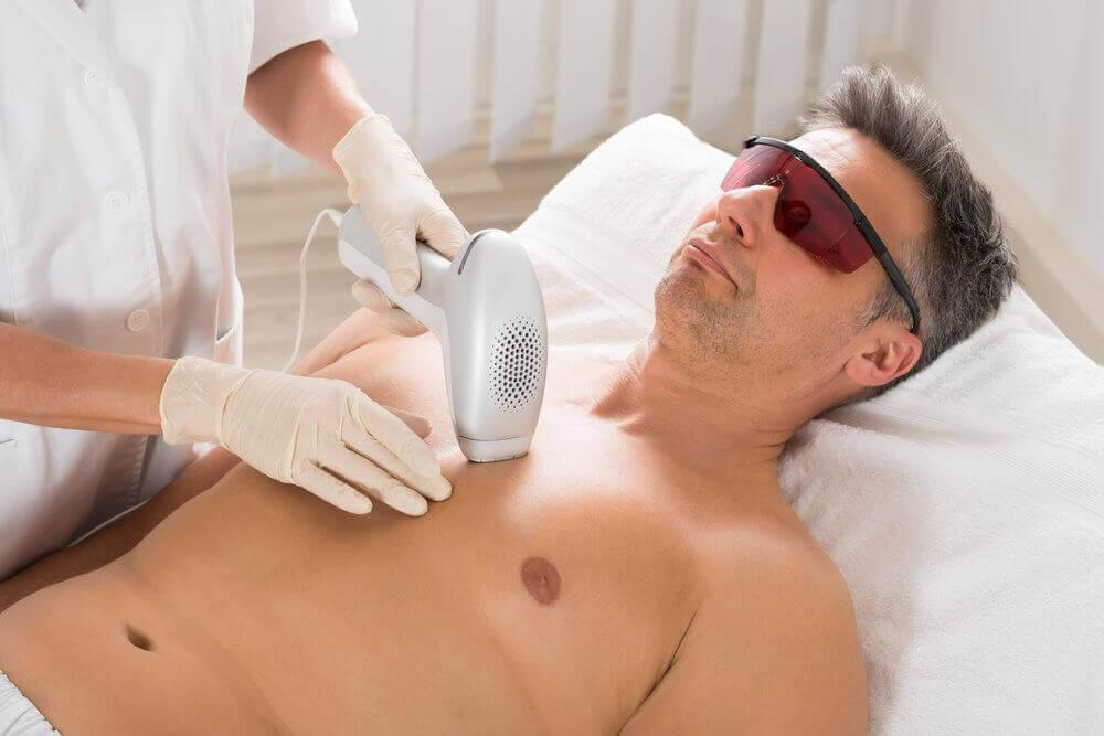 miehen ihokarvojen poisto laserilla