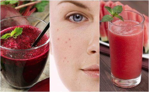 Taistele aknea vastaan puhdistavien smoothieiden avulla