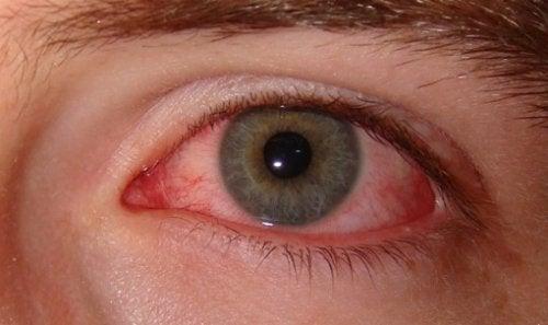 Tupakointi vaikuttaa silmien terveyteen.