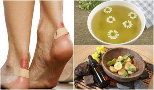 5 luontaishoitoa rakkuloihin jaloissa