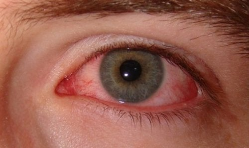 syy lopettaa tupakointi: silmien terveys