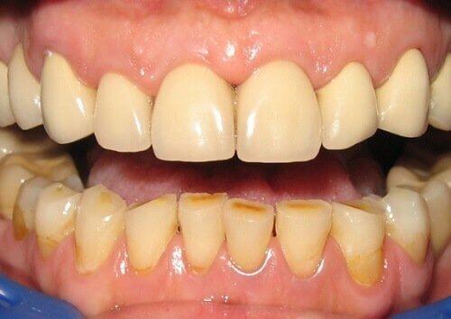 hammastulehduksen oireet: punaisuus