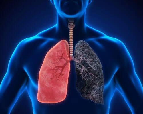 8 keuhkokuumeen oiretta