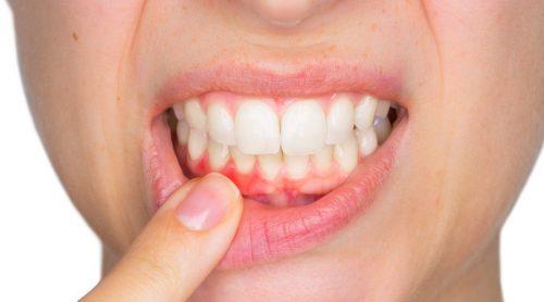 hammastulehduksen oireet: hammasmätä