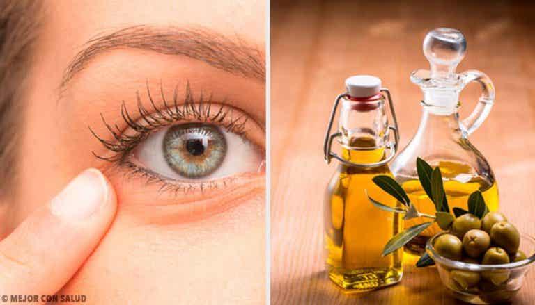6 luontaishoitoa silmänympärysten turvotukseen