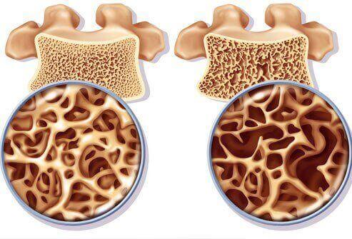 Osteoporoosin ehkäisy kalsiumpitoisilla luontaishoidoilla