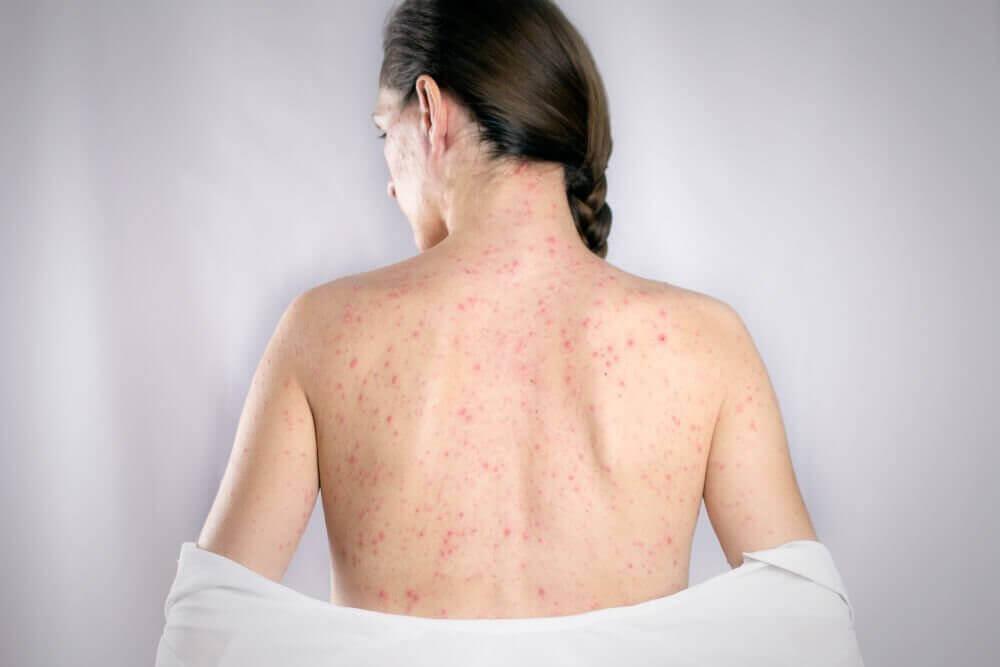 5 parasta luontaishoitoa herpeksen oireisiin selässä