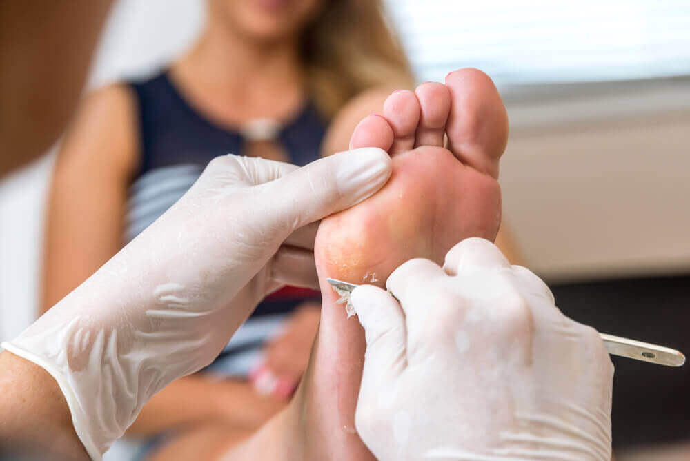 Parhaat keinot hoitaa känsiä jaloissa