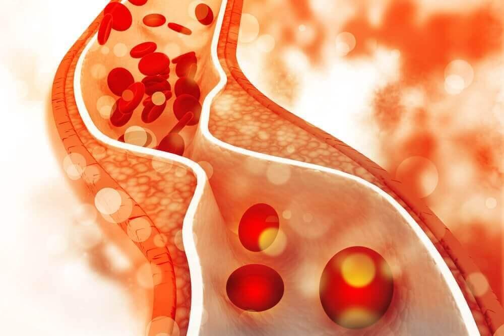 Omenaviinietikka kolesterolin alentamisessa