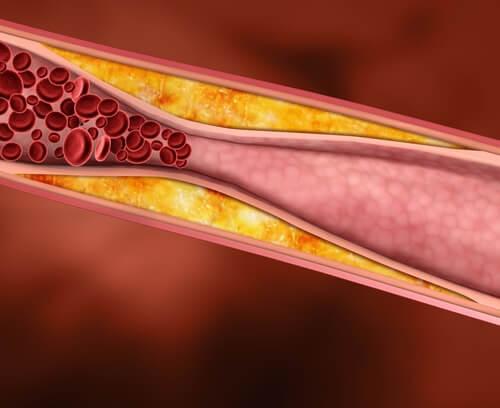 Omenaviinietikka auttaa alentamaan korkeaa kolesterolia