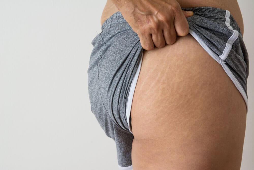 Luontaishoitoja kookosöljystä raskausarpiin