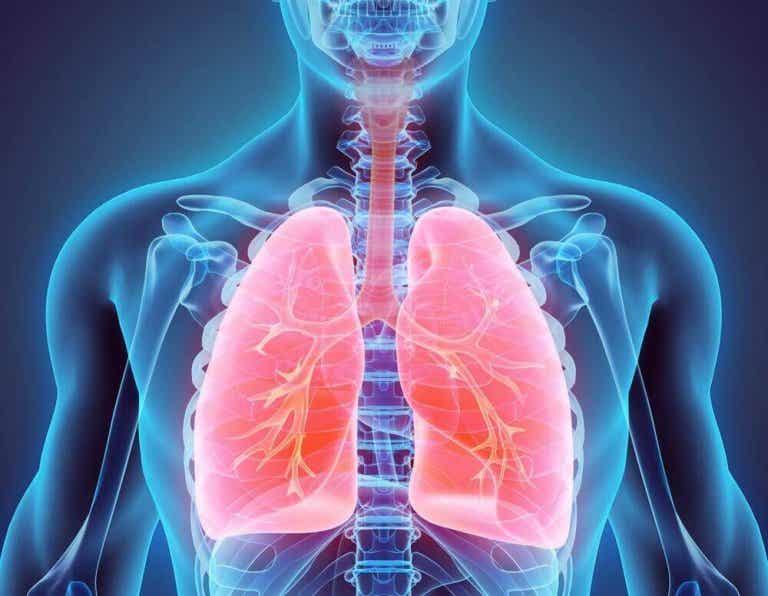 Luontaishoidot keuhkoputken laajentumatautiin (bronkiektasia)