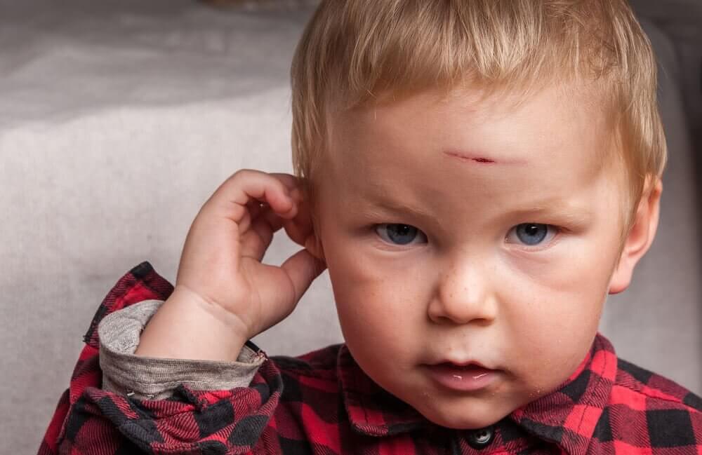 Lapsi on lyönyt päänsä