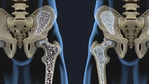 6 ruokavaliovinkkiä, jotka auttavat ehkäisemään osteoporoosia
