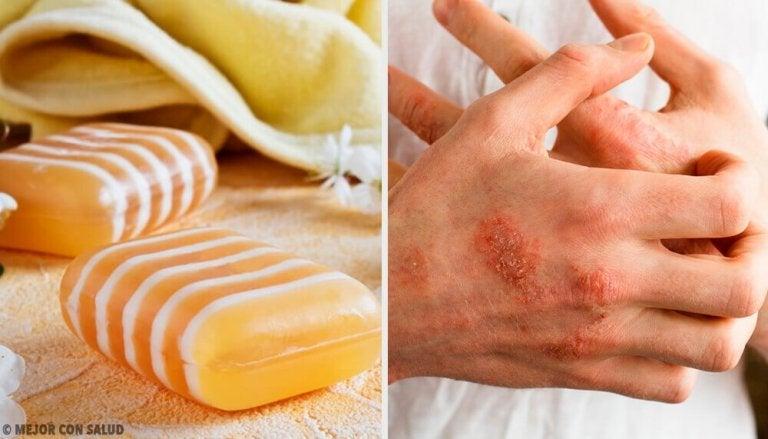 Saippua ihotulehduksen hoitoon