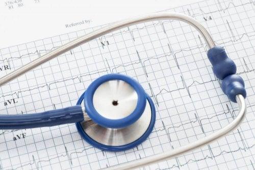 Sydämen rytmi ekg:ssä