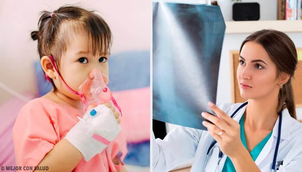 Keuhkokuumeen hoito: kaikki mitä sinun tulee siitä tietää