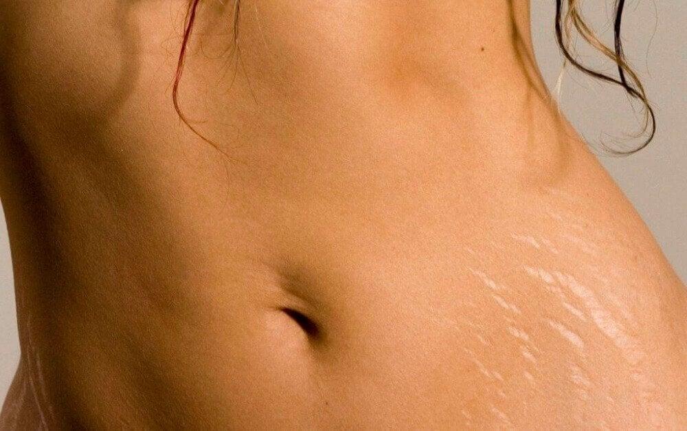 arganöljy raskausarpien ehkäisyyn