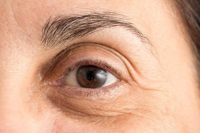Kuinka häivyttää tummia renkaita silmien alta