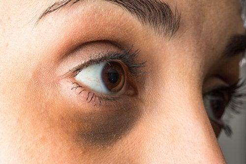 tumma silmänalusiho