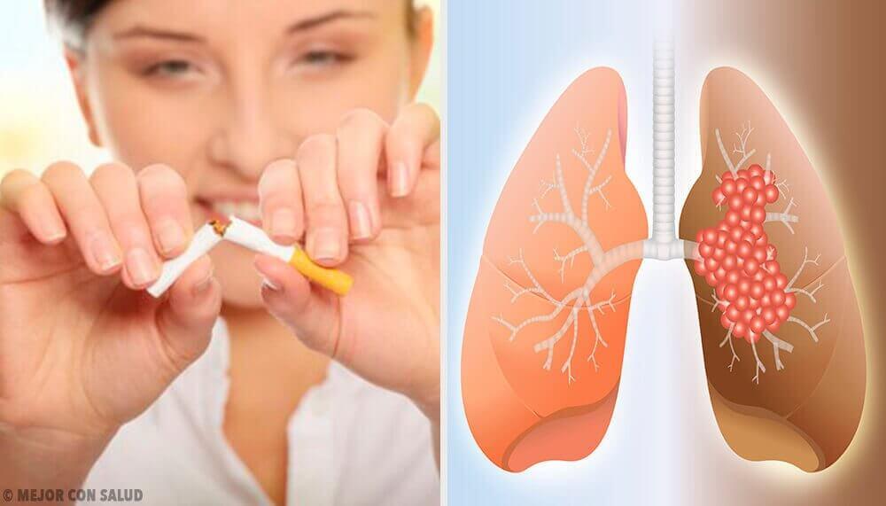 Keuhkosyövän aiheuttajat ja diagnoosi
