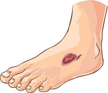Diabeetikko ei välttämättä huomaa jalan haavaa