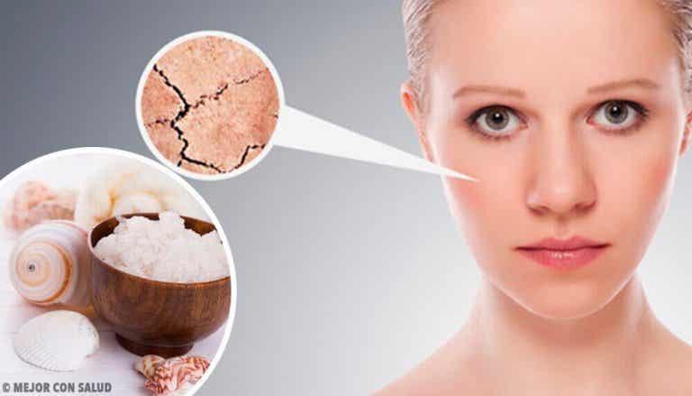 Eroon kuivasta ihosta 5 luontaishoidon avulla