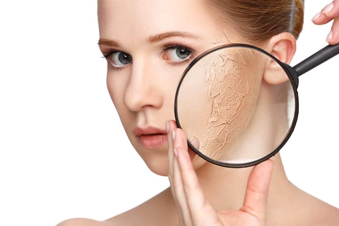 kuiva iho syynissä