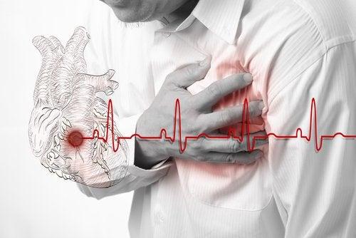 Sydäninfarkti: riskitekijät, oireet ja hoito
