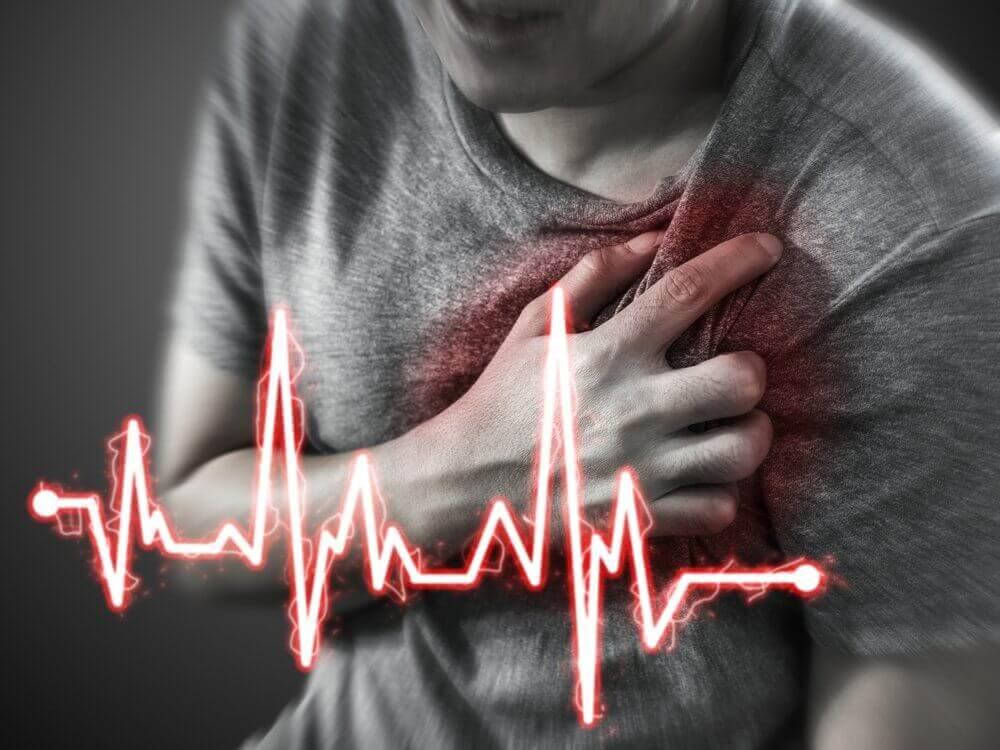 Sydäninfarktin oire