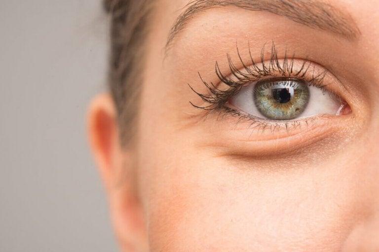 Miksi silmänympärykset turpoavat?