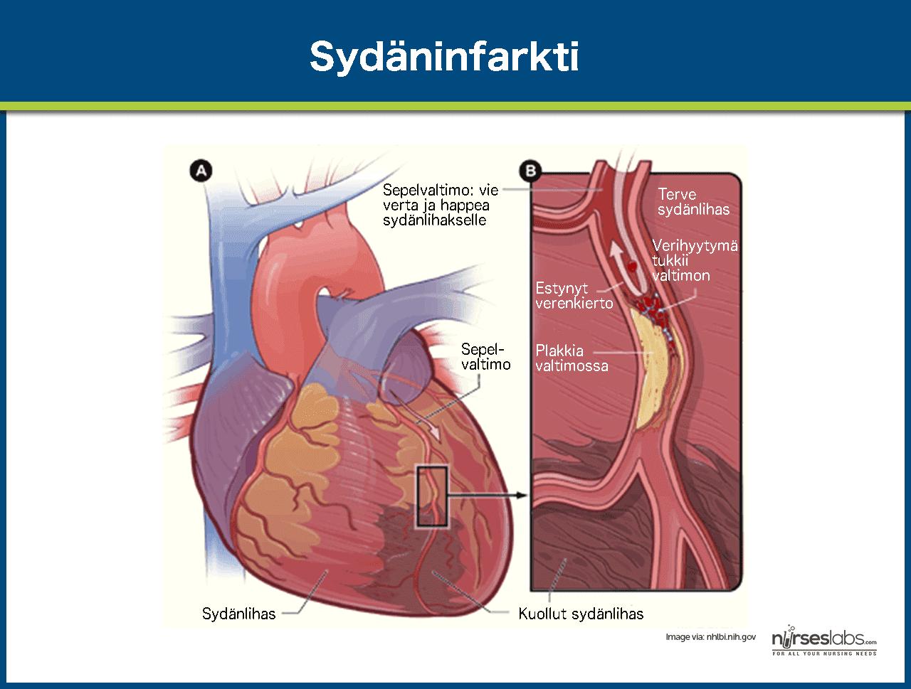 Sydäninfarkti Hoito