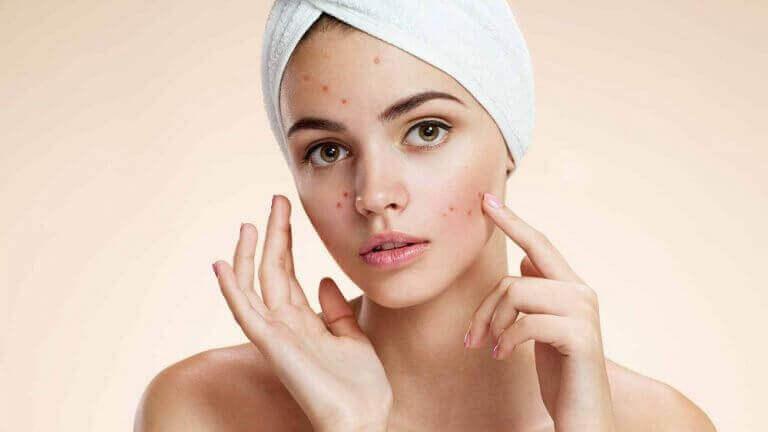 iho-ongelmien hoito: akne