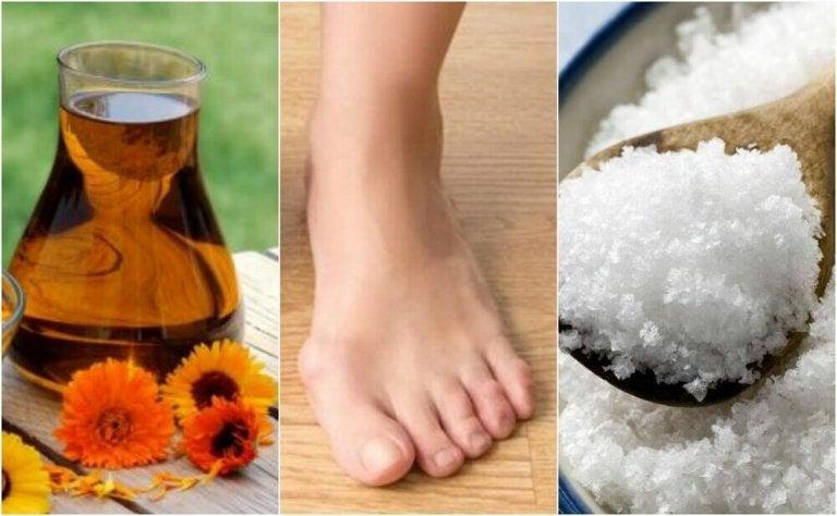Luonnolliset hoidot vaivaisenluihin: 4 vaihtoehtoa