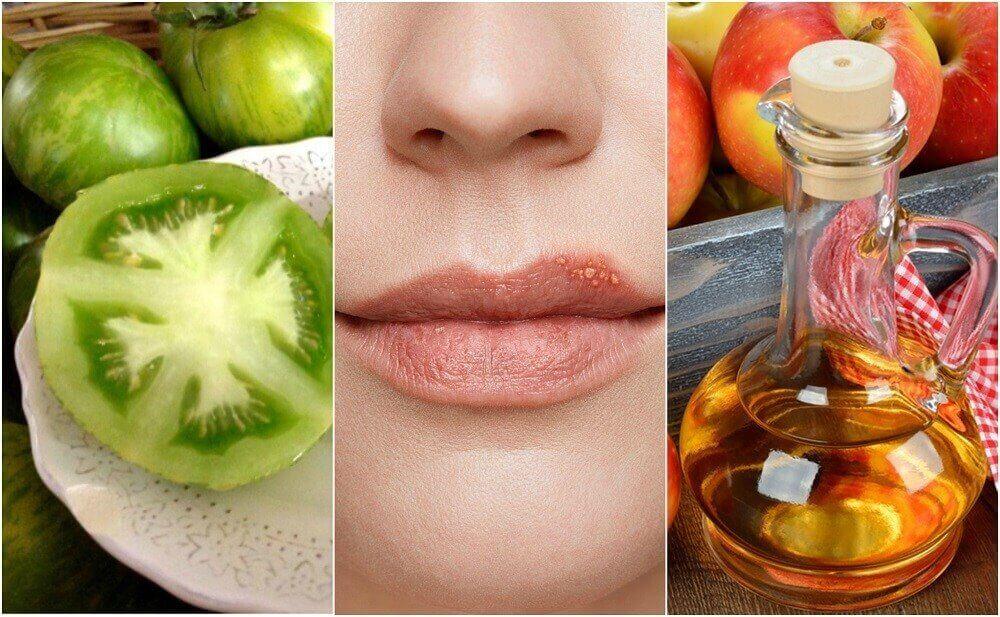 5 luontaishoitoa huuliherpekseen
