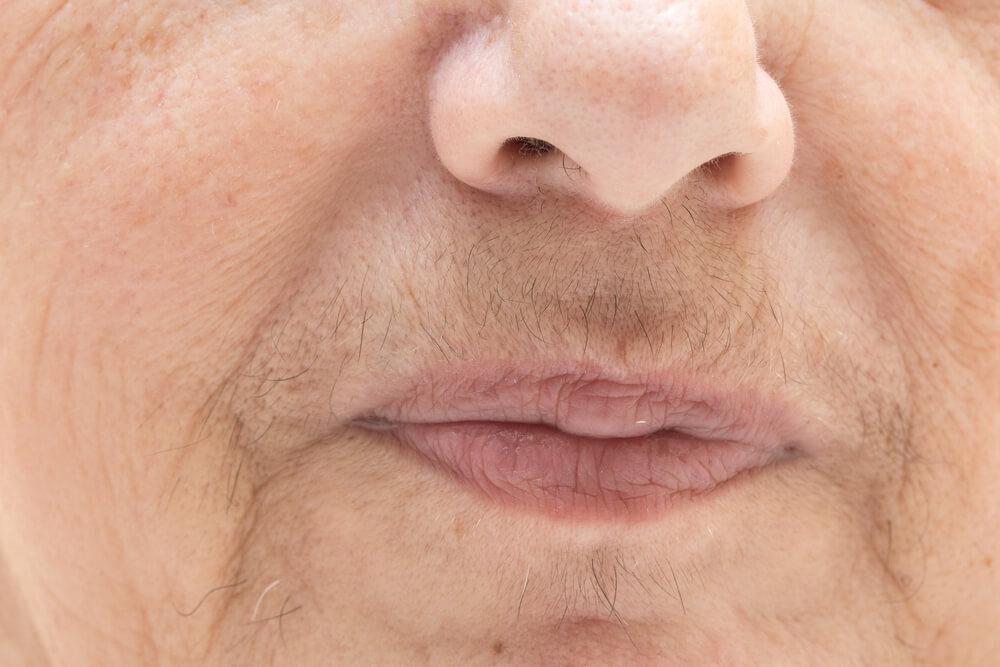 Mitä on ihon hirsutismi? Syyt ja hoito