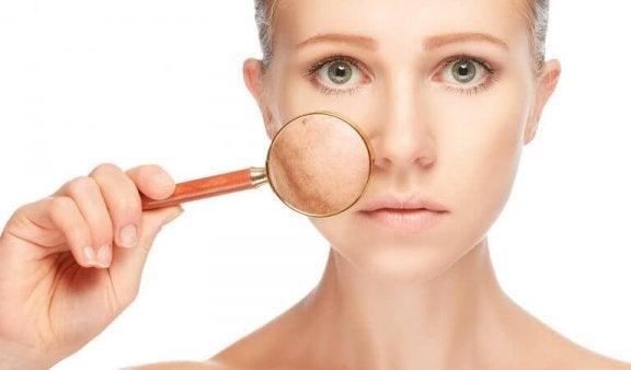 Kasvojen tavallisten iho-ongelmien hoito luontaistuotteilla