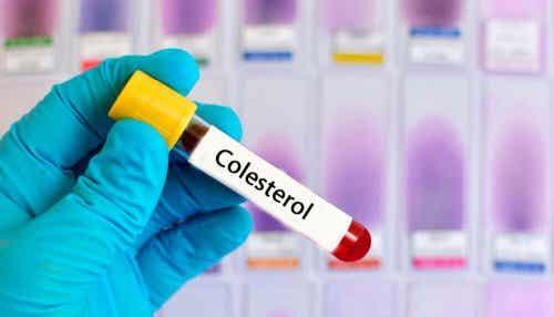 Kolesterolia vähentävät yrttihoidot: 6 reseptiä