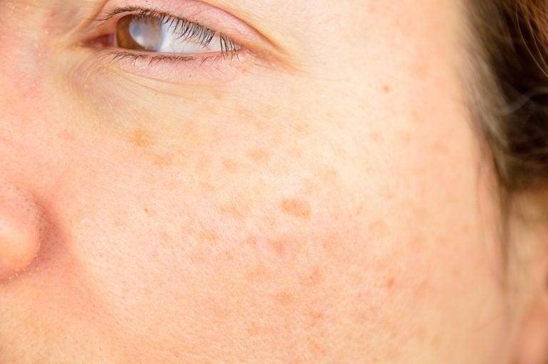 iho-ongelmien hoito: ruskeat laikut