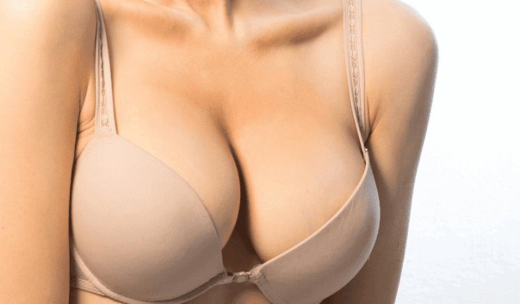 Rinnat voivat menettää kiinteyttään raskauden ja laihtumisen seurauksena