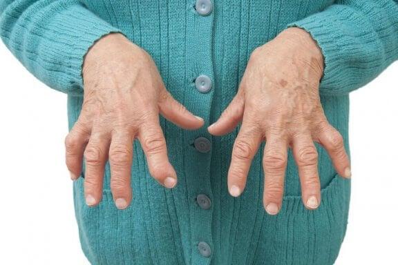 Nivelreuman hoito kotikonsteilla
